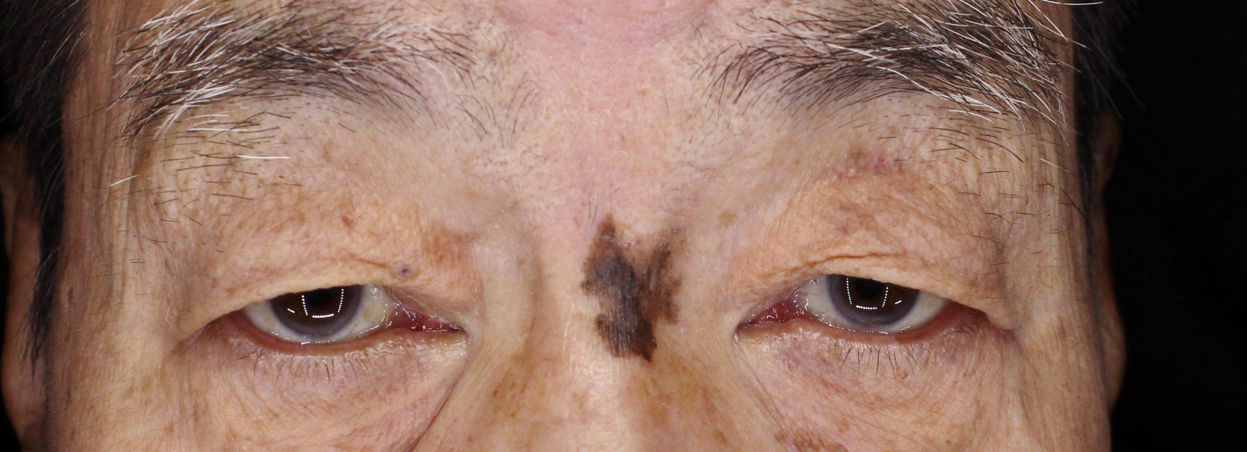 眼瞼下垂の手術前
