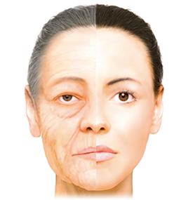 老化を引き起こすメカニズム