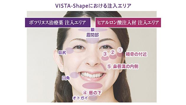 VISTA-Shapeにおける注入部位と量の目安