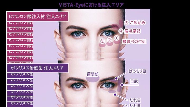 VISTA‐Eyeにおける注入部位